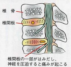 椎間板ヘルニアで起こる腰の痛み